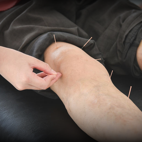 Dry Needle Therapy Conditions